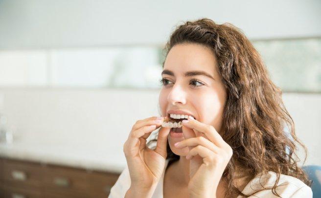 kelowna orthodontist orthodontic-treatments-young-woman-adult-invisalign-westside-orthodontics