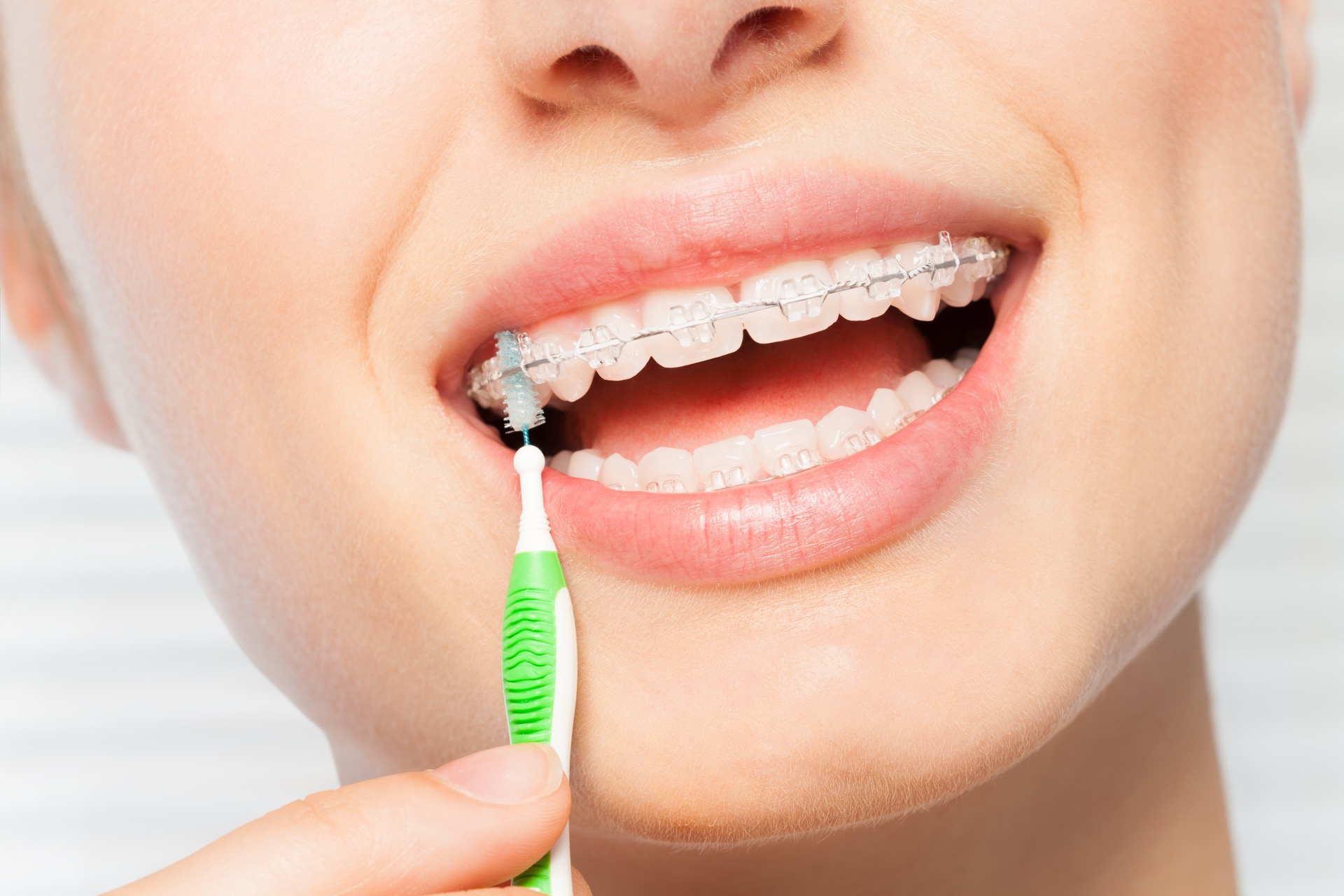 Woman properly brushing her braces to clean them