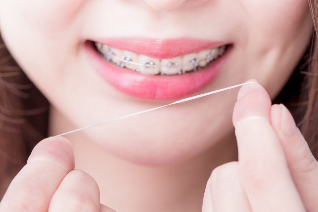 How to FlossWithBraces