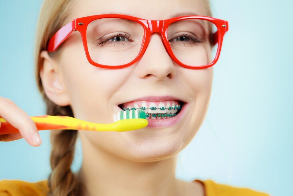 How to Take Care of Braces Properly and Get Them Off Faster