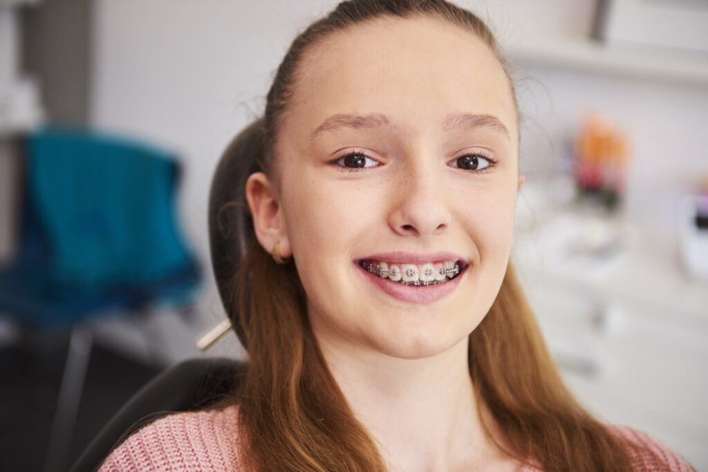 Read more on How to Get Through Wearing Braces